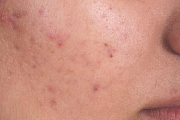 kulit rusak akibat jerawat